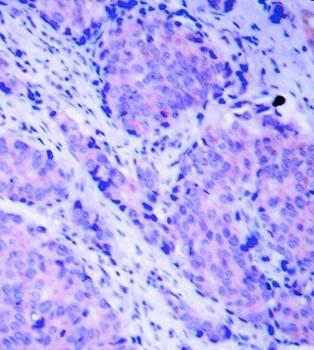 PDK1 (pSer241) Antibody gallery image 2