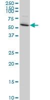 PDLIM5 Antibody   3E11-F6 gallery image 2