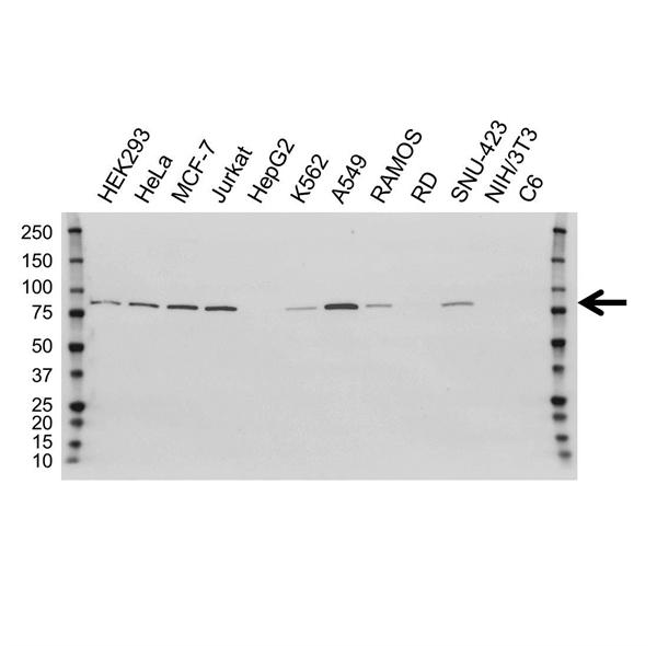 PFKP Antibody (PrecisionAb<sup>TM</sup> Antibody)   OTI1F2 gallery image 1