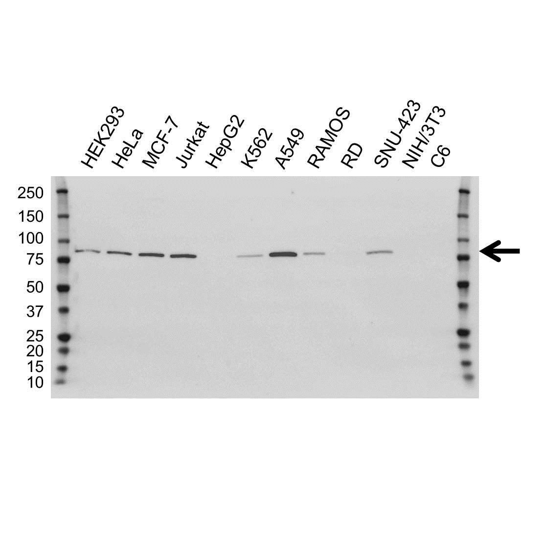 PFKP Antibody (PrecisionAb<sup>TM</sup> Antibody) | OTI1F2 gallery image 1