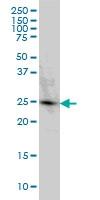 PGRMC2 Antibody | 3C11 gallery image 2