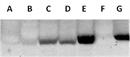 Phenylalanine-4-Hydroxylase Antibody   12257 thumbnail image 1