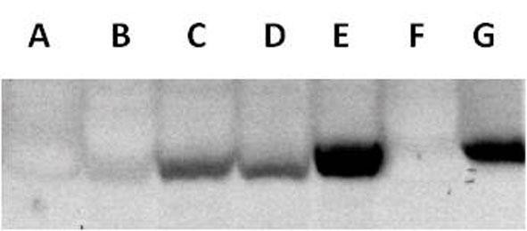 Phenylalanine-4-Hydroxylase Antibody | 12257 gallery image 1