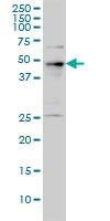 PHF1 Antibody | 2D3 gallery image 1