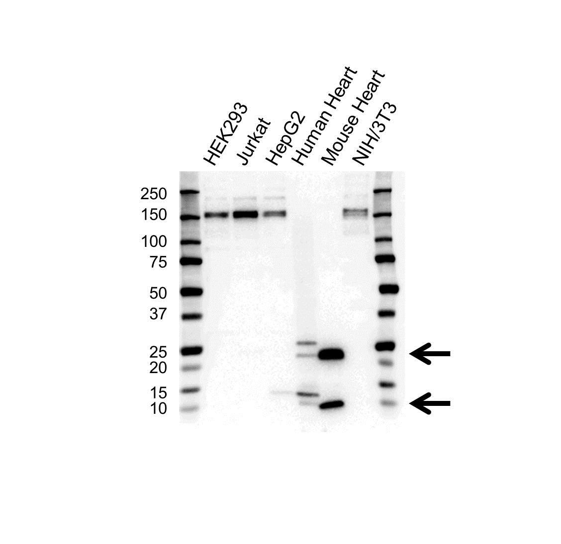 Phospholamban (Cardiac) Antibody (PrecisionAb<sup>TM</sup> Antibody) gallery image 1