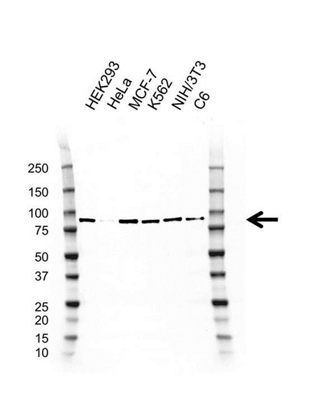 PI-3 Kinase Regulatory Subunit 1 Antibody (PrecisionAb<sup>TM</sup> Antibody) | D03/2G12-4 gallery image 1