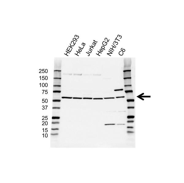 PI-4 Kinase 2A Antibody (PrecisionAb<sup>TM</sup> Antibody) gallery image 1
