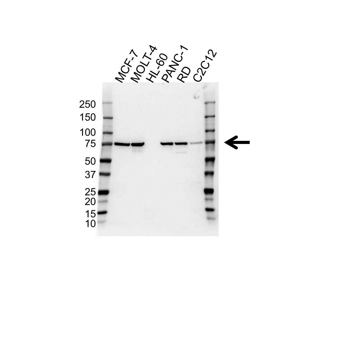 PIAS3 Antibody (PrecisionAb<sup>TM</sup> Antibody) gallery image 1