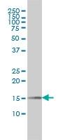 PIN1 Antibody | 2F2 gallery image 1