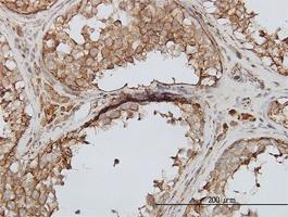 PIP5K3 Antibody | 6C7 gallery image 2