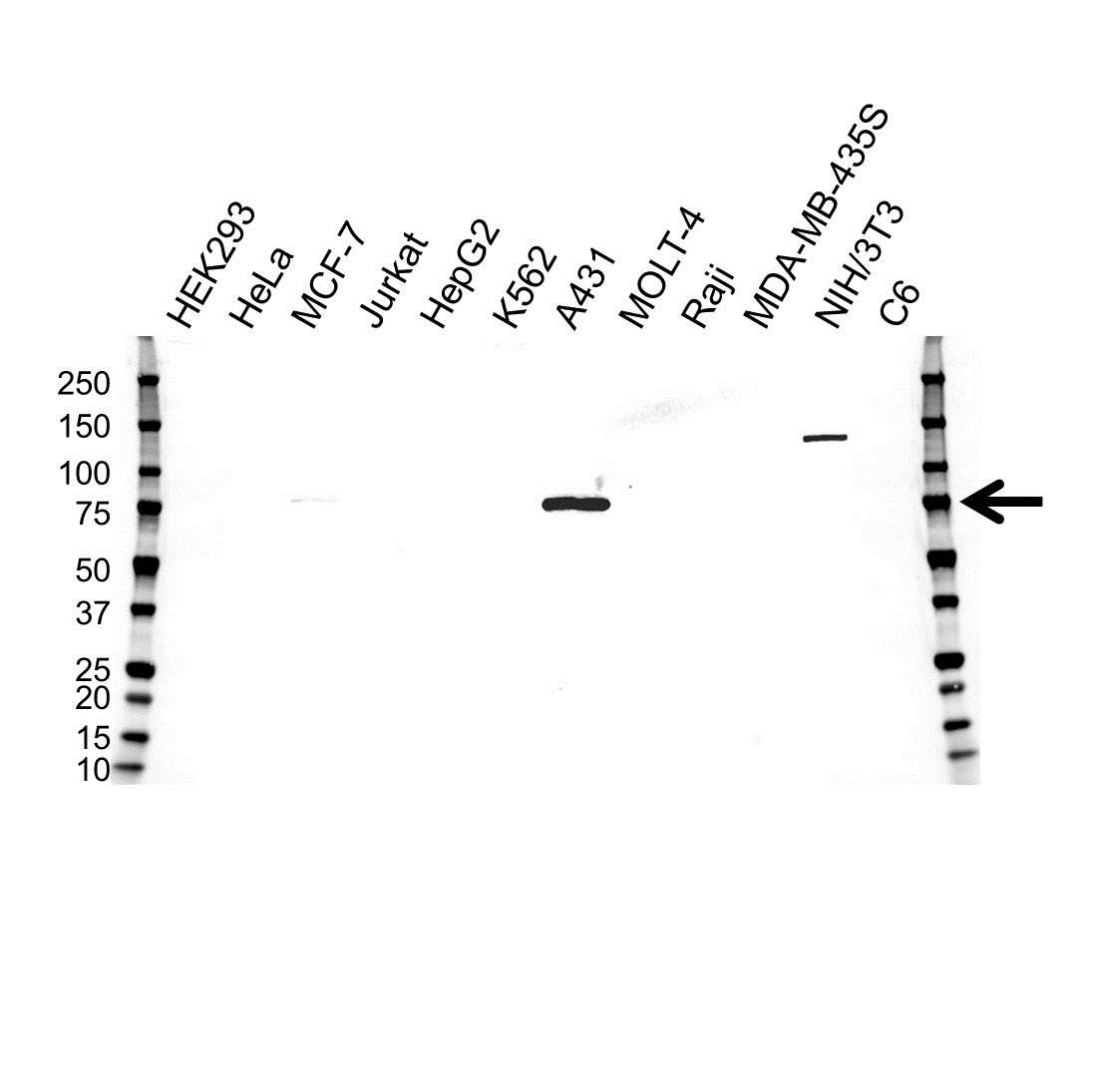 Plakophilin 1 Antibody (PrecisionAb<sup>TM</sup> Antibody) gallery image 1