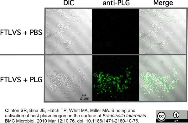 Plasminogen Antibody gallery image 1