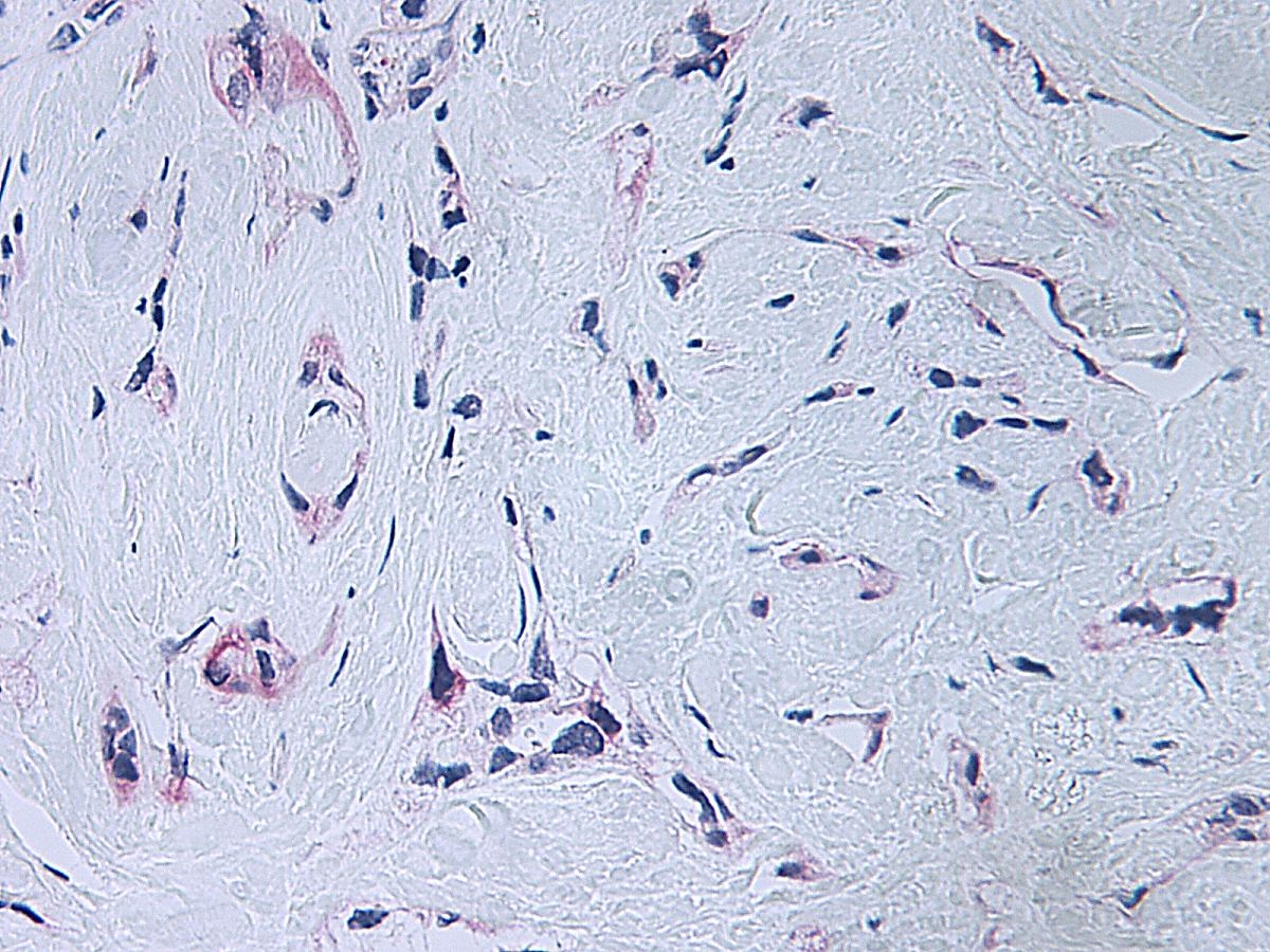 Platelet Factor-4 Antibody gallery image 3