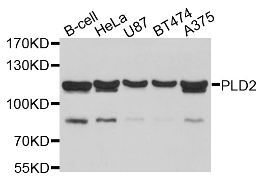 PLD2 Antibody gallery image 1