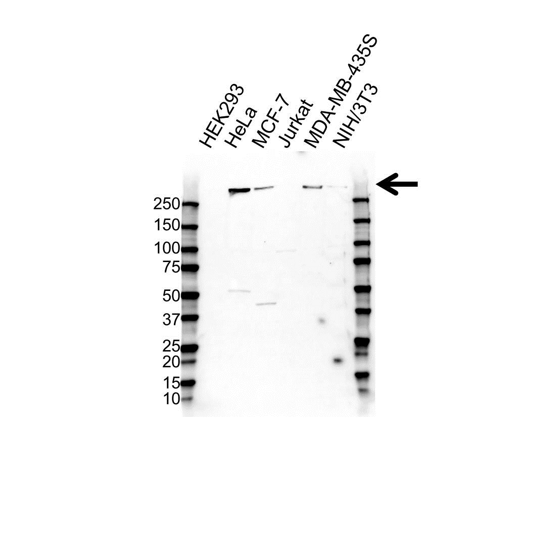 Plectin Antibody (PrecisionAb<sup>TM</sup> Antibody) gallery image 1