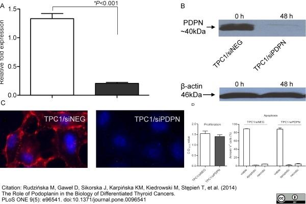 Podoplanin Antibody | D2-40 gallery image 3
