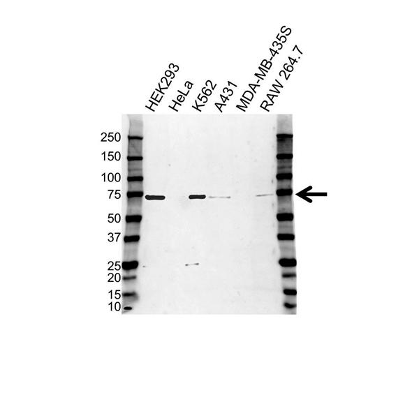 Poly [ADP-RIBOSE] Polymerase 3 Antibody (PrecisionAb<sup>TM</sup> Antibody) gallery image 1