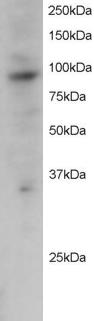 PRAM1 Antibody gallery image 1