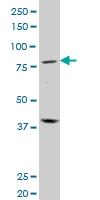 PRDM1 Antibody | 2B10 gallery image 1