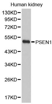 Presenilin-1 Antibody gallery image 1