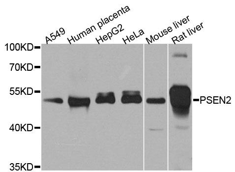Presenilin-2 Antibody gallery image 1