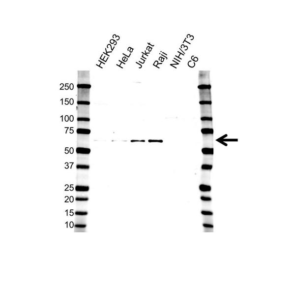 PRESENILLIN-1 Antibody (PrecisionAb<sup>TM</sup> Antibody) gallery image 1