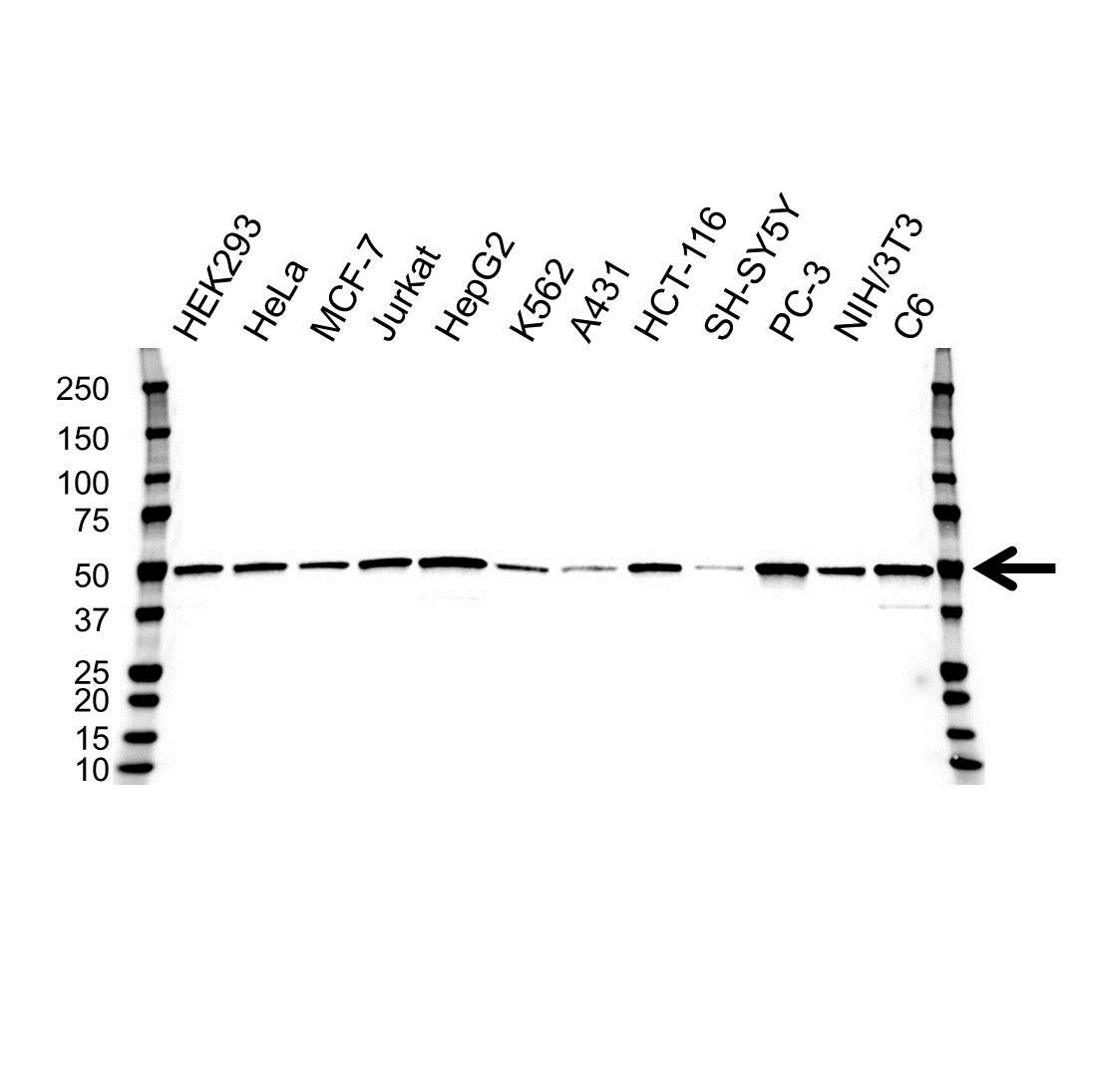 PRKAR1A Antibody (PrecisionAb<sup>TM</sup> Antibody) | OTI6C7 gallery image 1