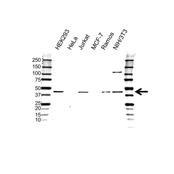PRMT1 Antibody (PrecisionAb<sup>TM</sup> Antibody) gallery image 1