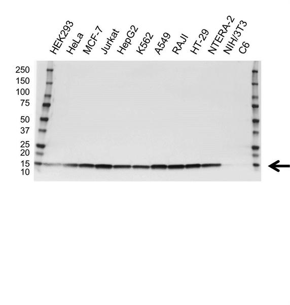 PROFILIN-1 Antibody (PrecisionAb<sup>TM</sup> Antibody) | OTI1D5 gallery image 1
