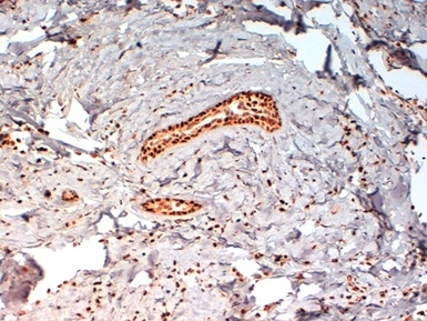 Progesterone Receptor (pSer190) Antibody   1154 gallery image 2