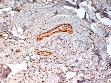 Progesterone Receptor (pSer190) Antibody | 1154 gallery image 1