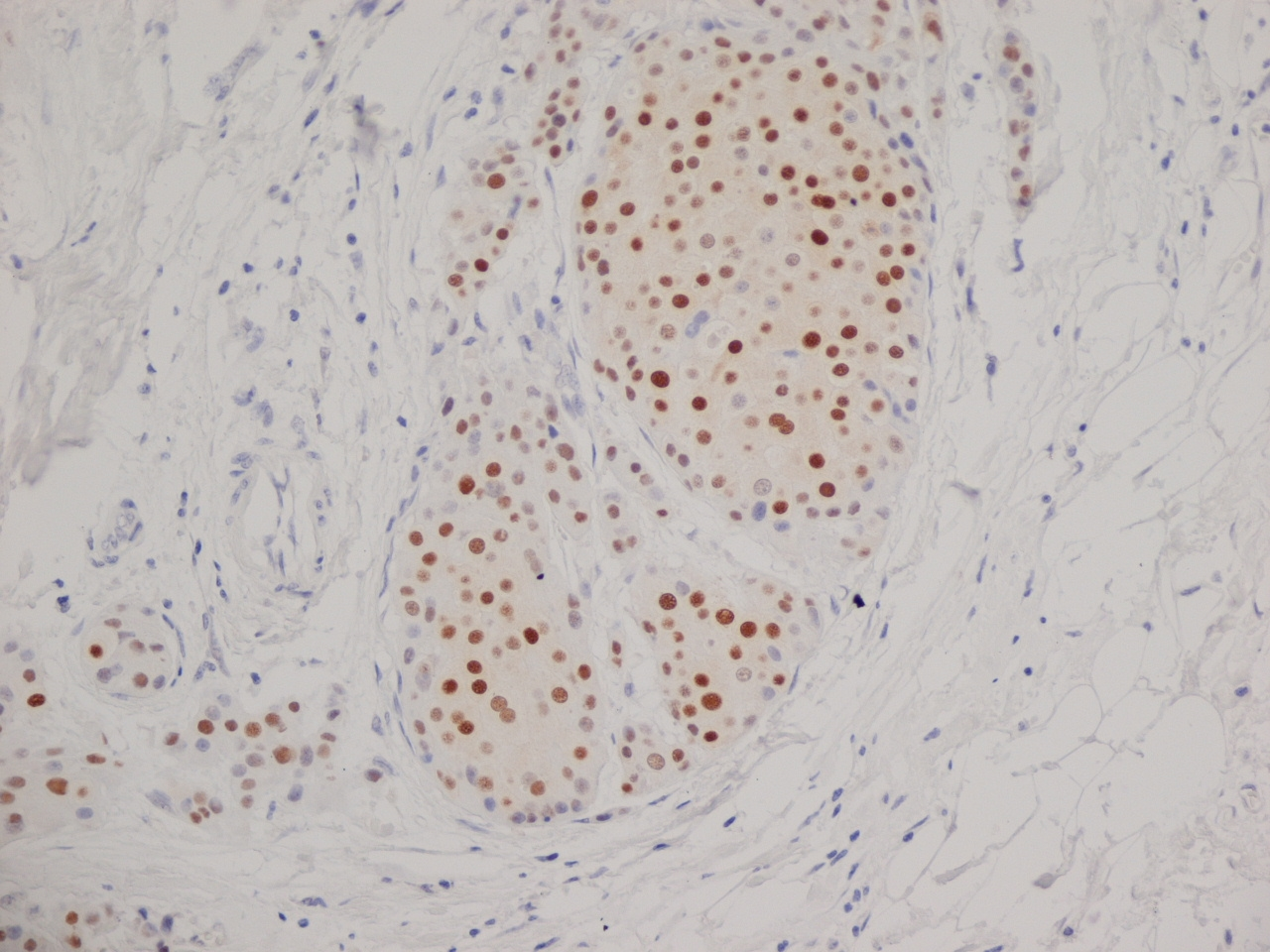 Progesterone Receptor Antibody | 1A6 gallery image 5