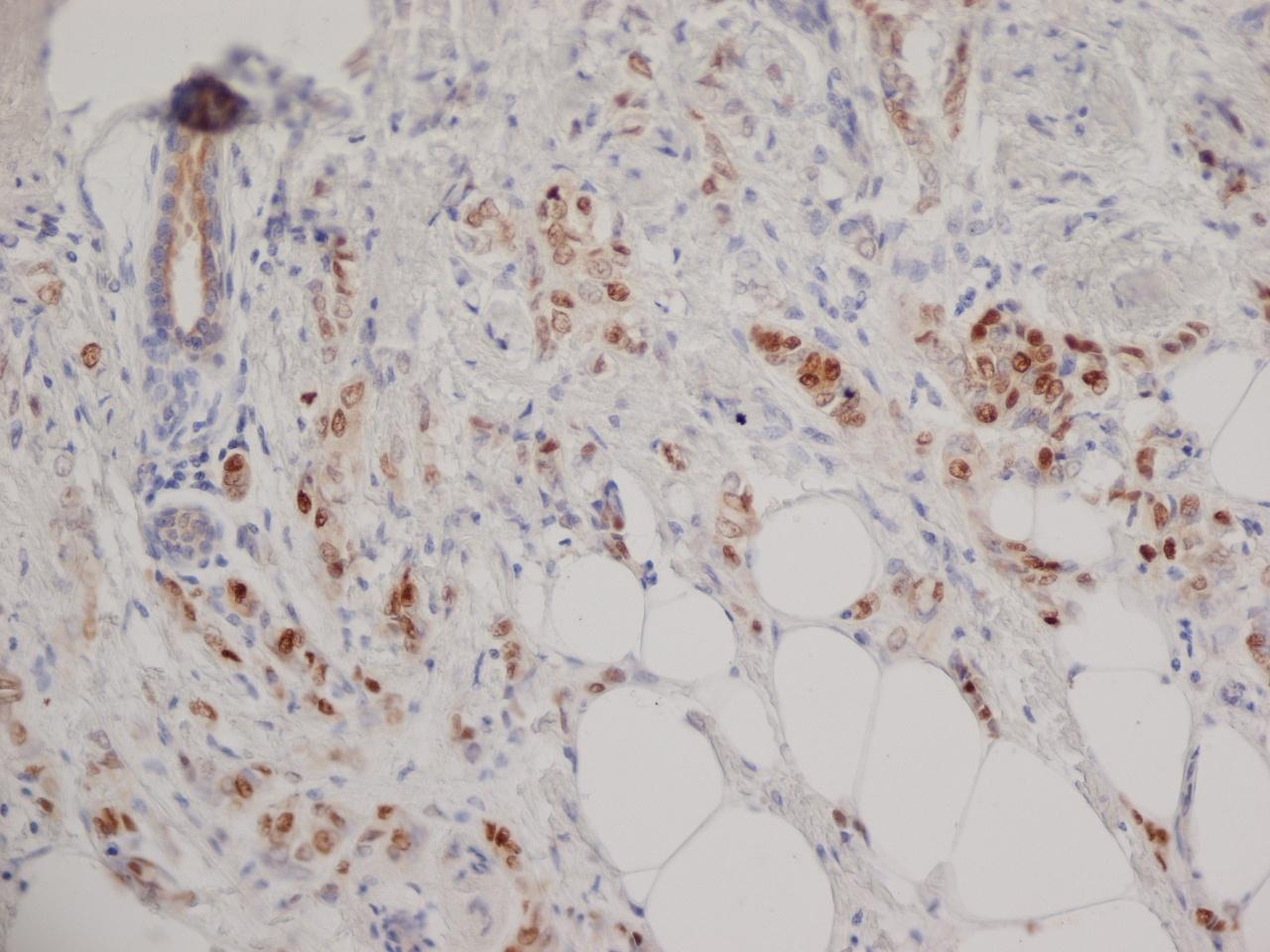 Progesterone Receptor Antibody | 1A6 gallery image 6