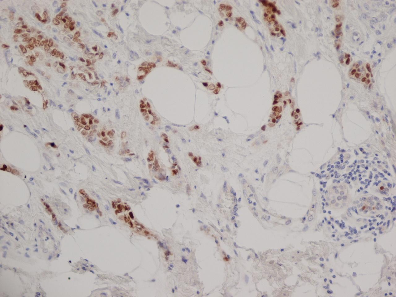 Progesterone Receptor Antibody | 1A6 gallery image 2