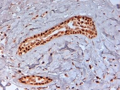 Progesterone Receptor (pSer190) Antibody | 1154 gallery image 2