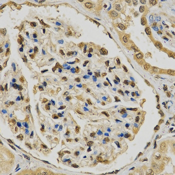 Prolyl Hydroxylase 2 Antibody gallery image 1