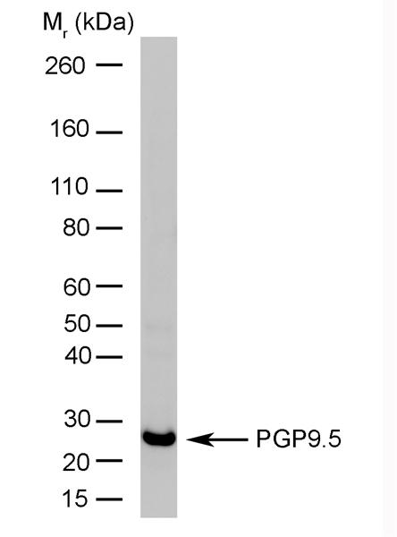 Protein Gene Product 9.5 Antibody | 13C4 gallery image 1