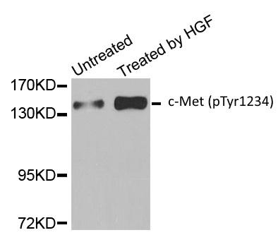 c-Met (pTyr1234) Antibody gallery image 1