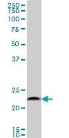 PSMB6 Antibody | S51 gallery image 1