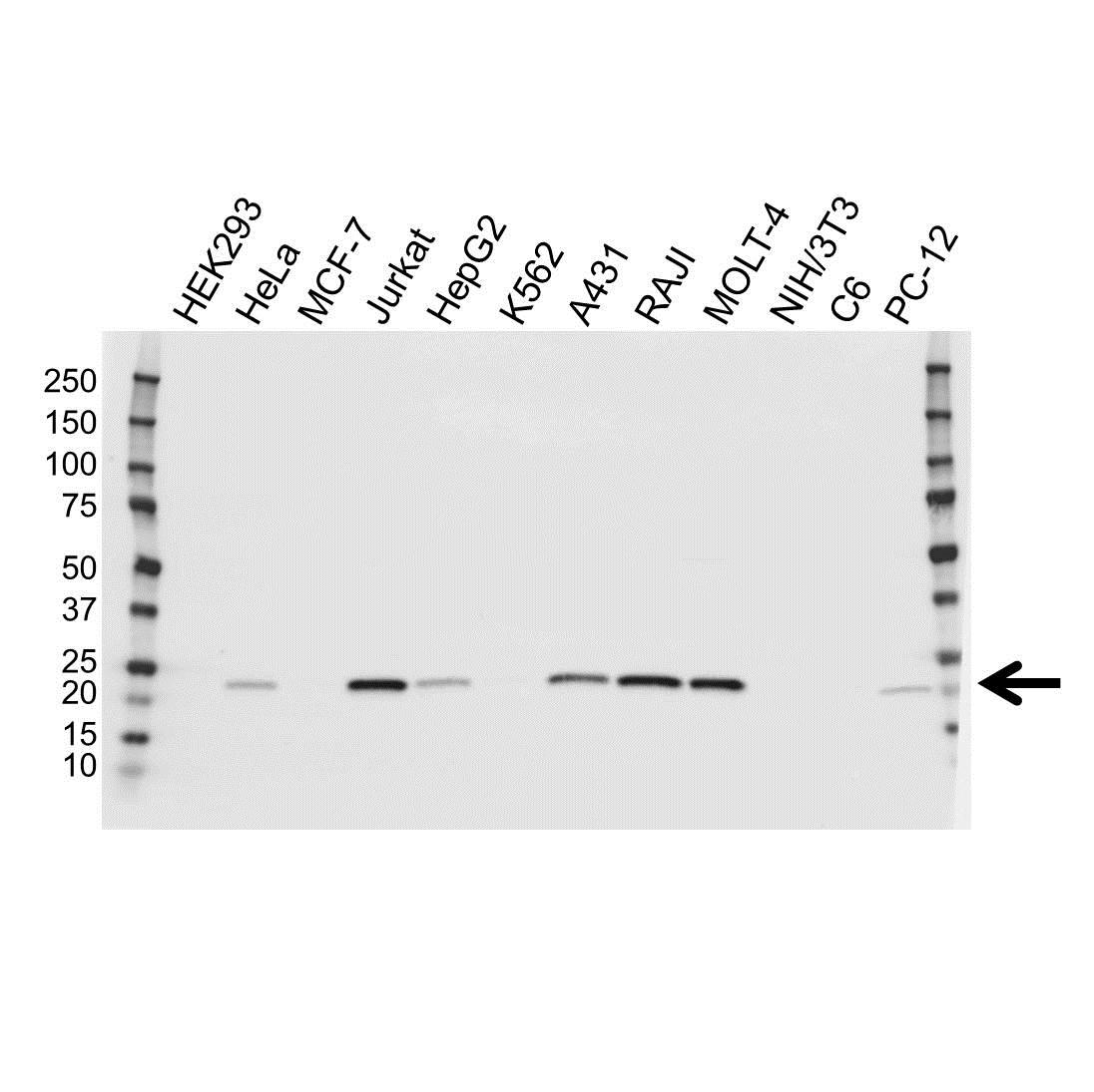 PSMB8 Antibody (PrecisionAb<sup>TM</sup> Antibody) gallery image 1