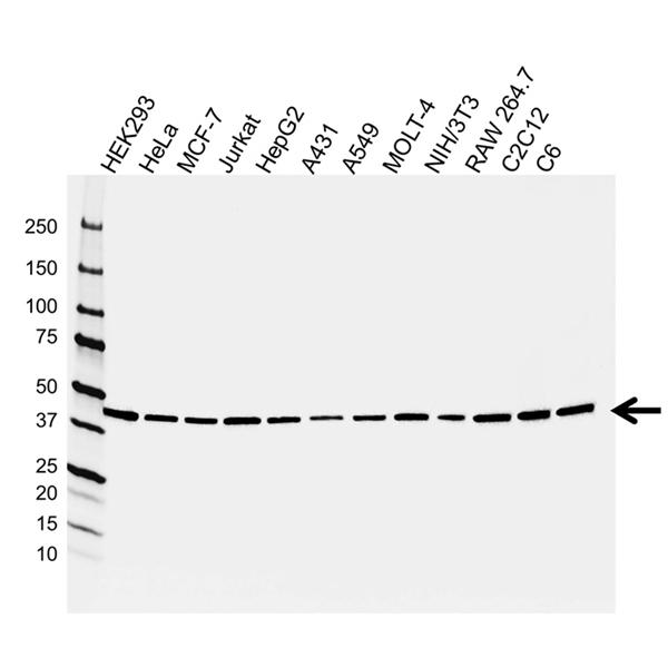 PSMC5 Antibody (PrecisionAb<sup>TM</sup> Antibody) gallery image 1