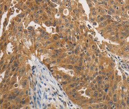 PTPN11 Antibody gallery image 2