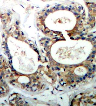 PTPN11 (pTyr542) Antibody gallery image 2