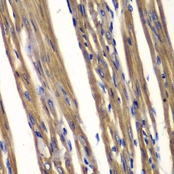 PTPN2 Antibody gallery image 2