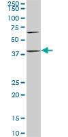 PTX3 Antibody | 2B10 gallery image 1