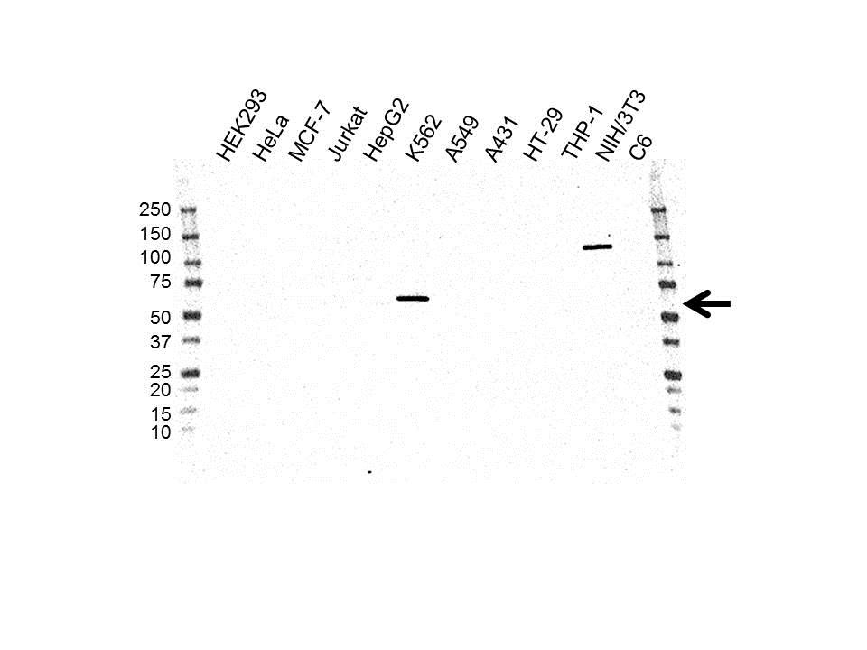 Pyruvate Kinase PKLR Antibody (PrecisionAb<sup>TM</sup> Antibody)   OTI1F3 gallery image 1