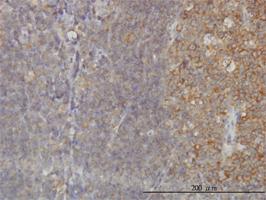 RAB21 Antibody   1F6 gallery image 1