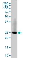 RAB3B Antibody | 3F12 gallery image 1
