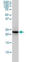 RAB4A Antibody | 1C10 gallery image 1