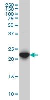 RAB7B Antibody | 3B3 gallery image 1